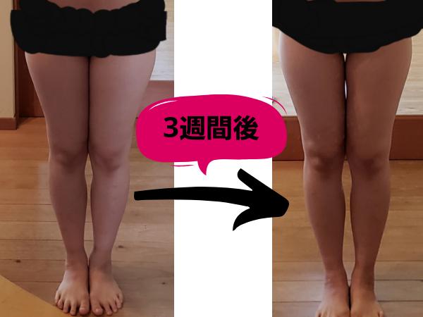 3週間太もも痩せにチャレンジした結果